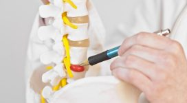 5-Myths-on-Disc-Herniation